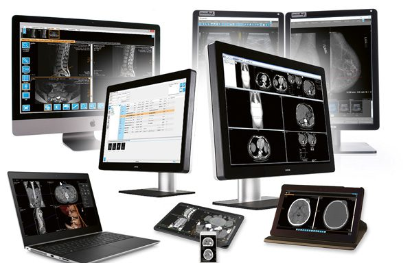 IMAGE Information Systems | iQ-SYSTEM PACS