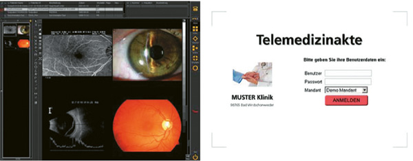 NEXUS / CHILI | Web + Telemedizinakte