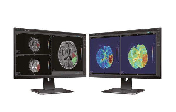 Cercare Medical | KI-gesteuerte Perfusionsanalyse für Gehirn-CT und MRI