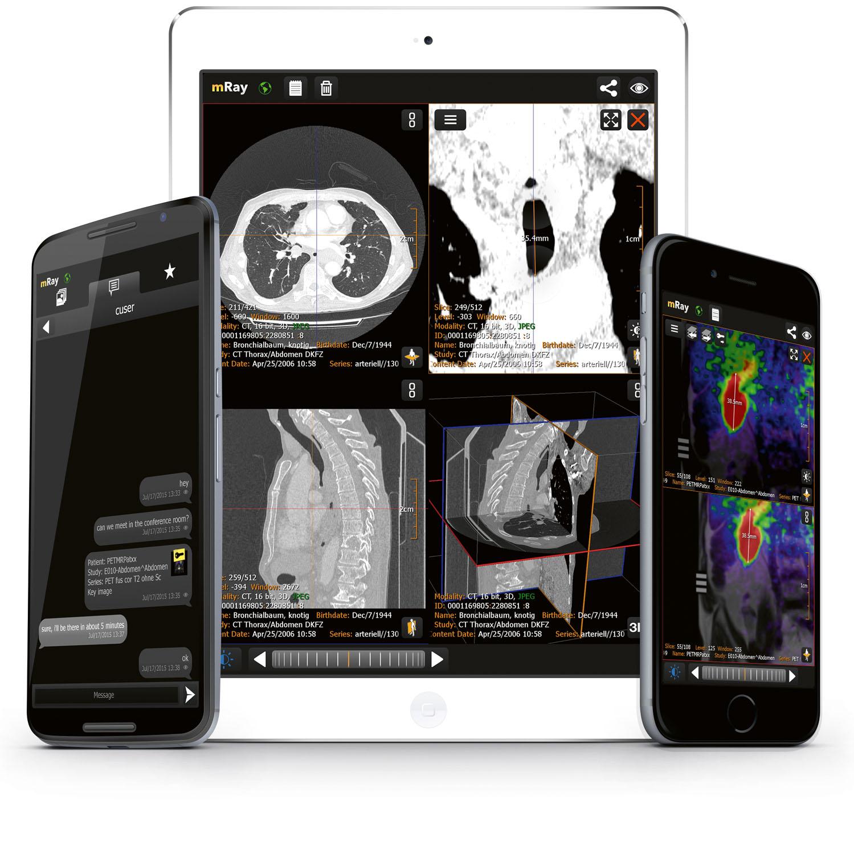 mbits: Partner für die Radiologie von morgen