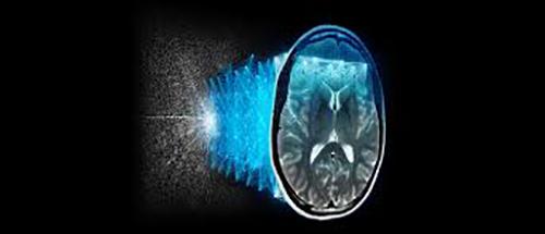 AIR™ Recon DL hebt die Bildqualität von MRT-Scans auf ein neues Level