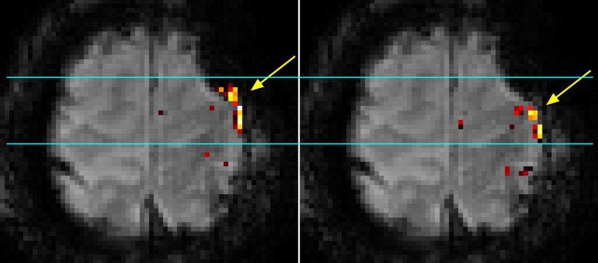 7T-Scanner liefert präzise Landkarte der Gehirnaktivität