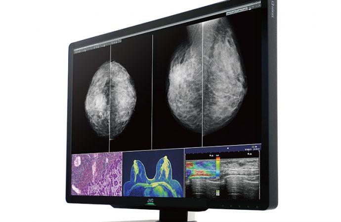 Ein Display für unterschiedliche diagnostische Bilder