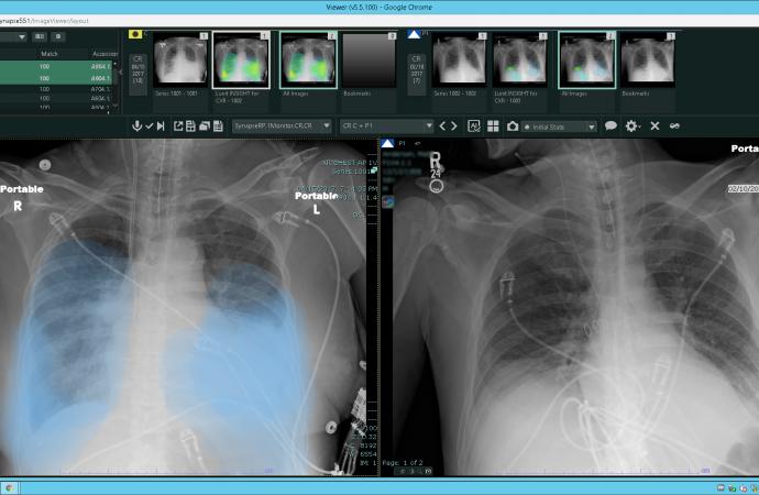 REiLI identifiziert interstitielle Lungenentzündungen