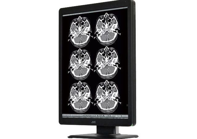 Hochauflösendes Graustufen-Display für radiologische Bilddaten