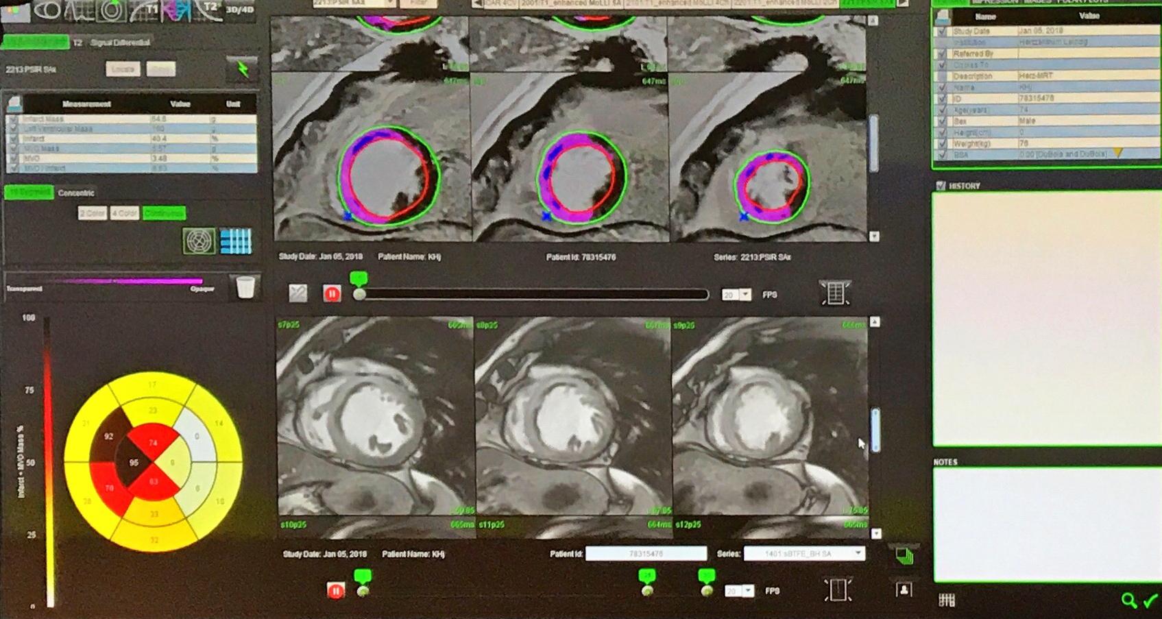 Herzensangelegenheit: Kardiologie Face-off