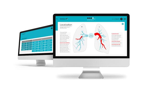 Neo Q gewinnt Red Dot Award für Radiologie-Software