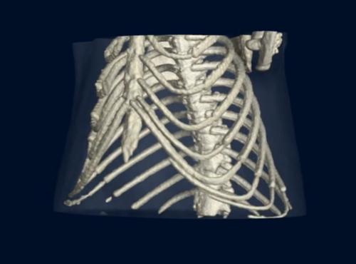 Röntgen-Technologie: Ein neuer Blick in die Lunge (und andere Organe)
