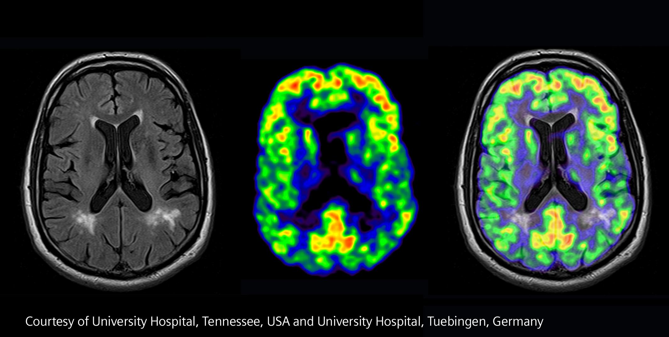 Für mehr hybride Wege in der bildgebenden Hochpräzisionsdiagnostik