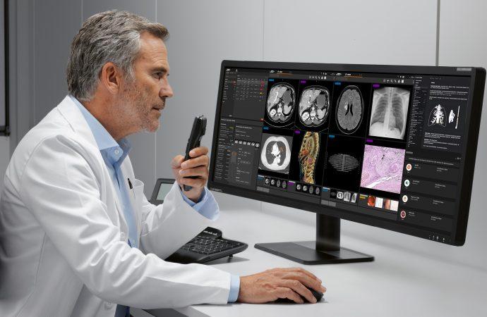 Bild- und Befundsoftware Syngo Carbon von Siemens Healthineers integriert intelligente Reports