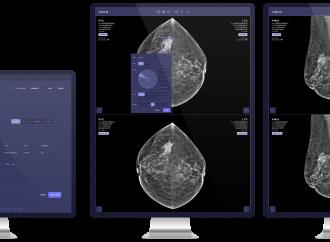 Vara schließt neue Finanzierungsrunde für KI-basierte Brustkrebs-Screening Software ab