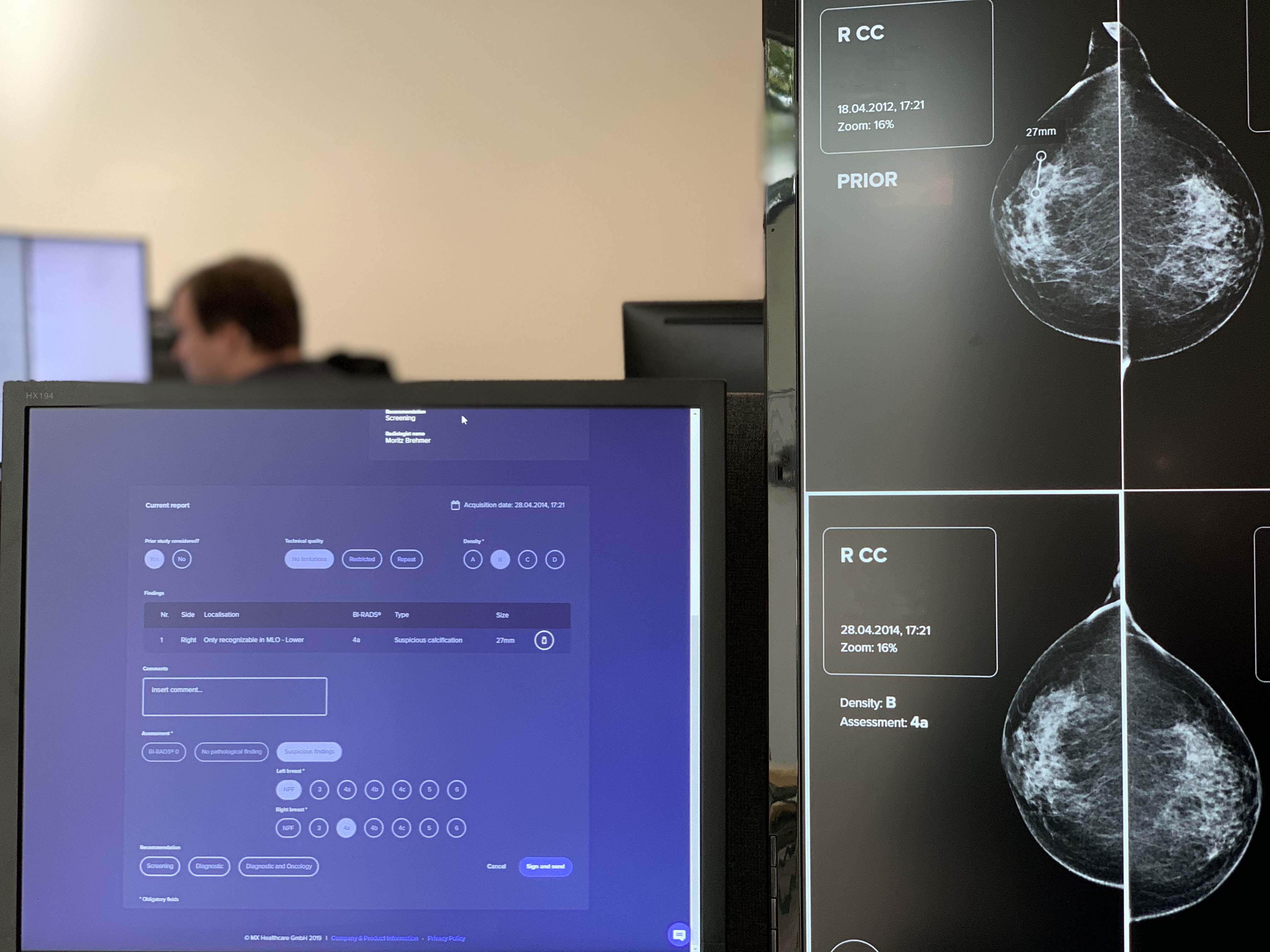 KI-Software zur  Brustkrebsvorsorge