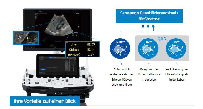 Präzise Leberdiagnostik mit dem neuen RS85 Prestige Ultraschallsystem von Samsung