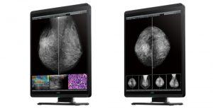 Innovationen für die radiologische Bildbefundung und -betrachtung