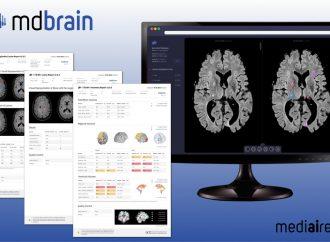 KI-basierte Software-Lösung  verbessert und beschleunigt die Demenzdiagnostik