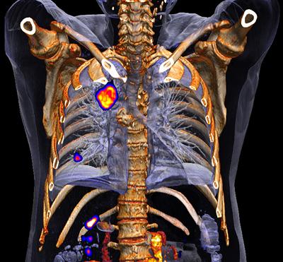 PET/CT bei Kopf-Hals-Tumoren erspart unnötige Operationen