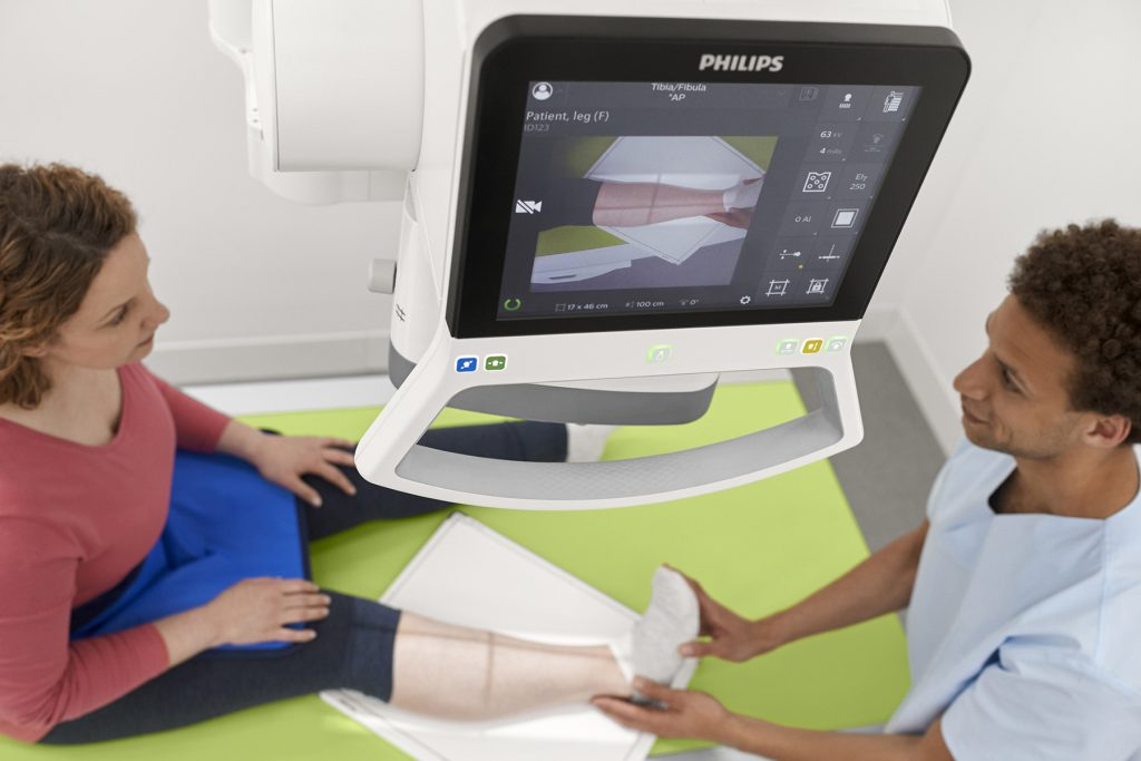 News - philips-digitaldiagnost-c90-untersuchung-fibula-skyplate-live-kamera-hs-20190227.download.jpg