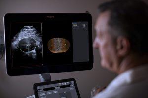 3D-Ultraschall des abdominalen Aortenaneurysmas (AAA)