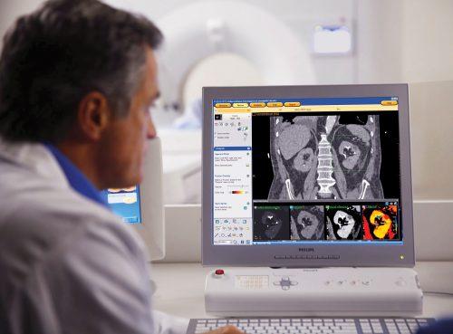 Künstliche Intelligenz und Bildgebungsinnovationen führen gezielt zur sicheren Diagnose