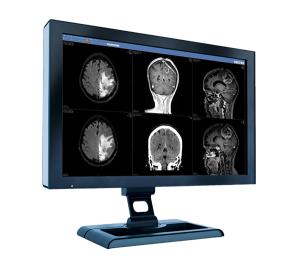 Mobile_Radiologie - anatomic-linking