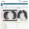 Erste CE-gekennzeichnete KI-Lösung für die CT-Thorax bei COVID-19