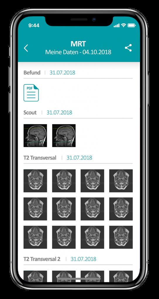 Mobile_Radiologie - smartphone-roentgenbilder